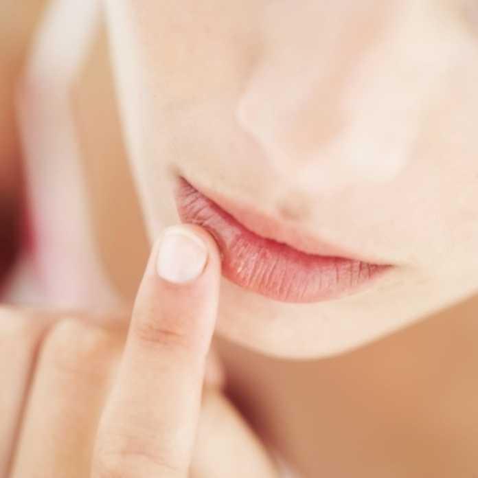 સૂકા અને ફાટી ગયેલા Lips માટે બ્યુટી ટીપ્સ